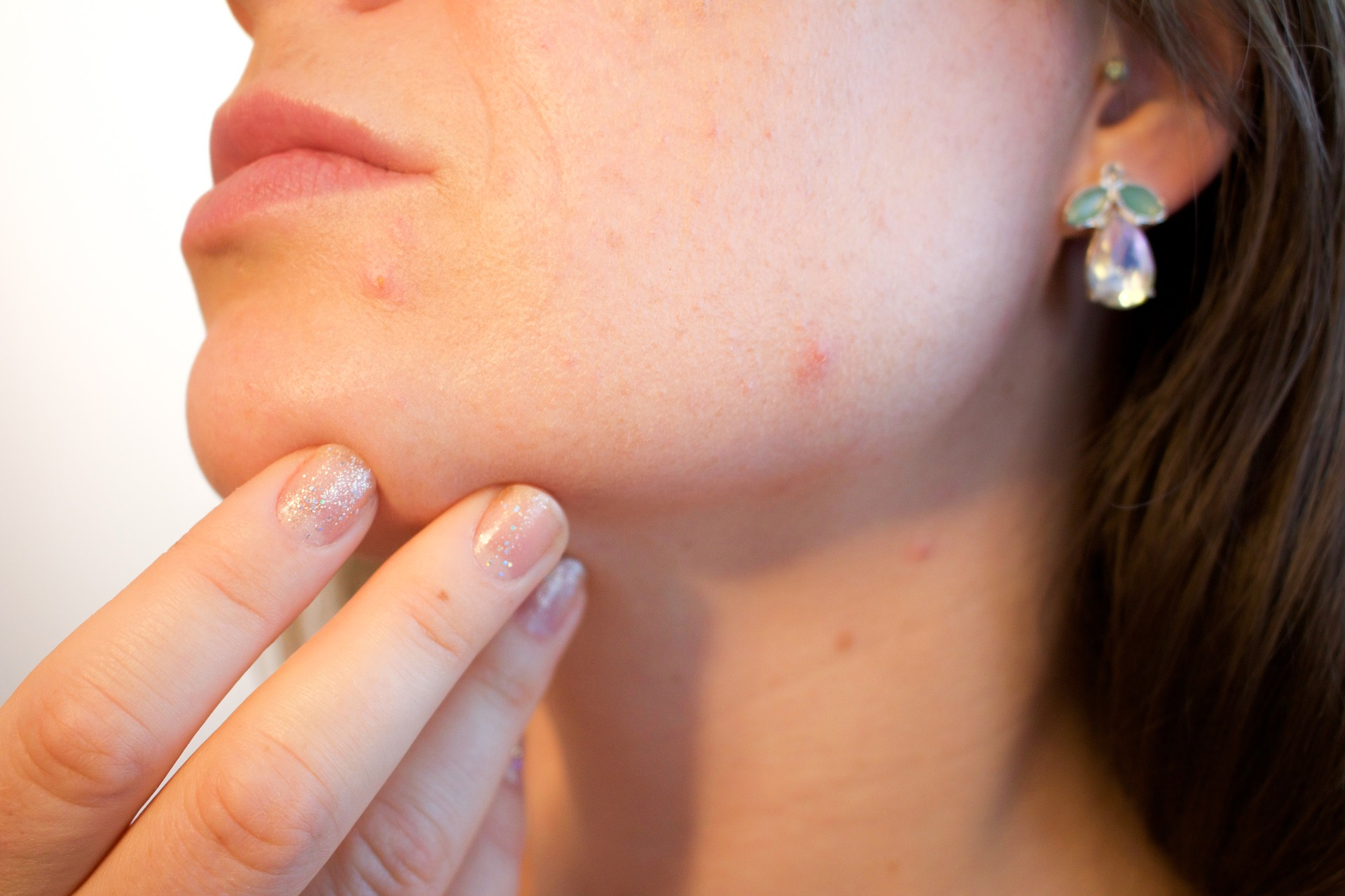 Alleato contro l'acne